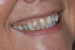 clear braces lichfield staffordshire