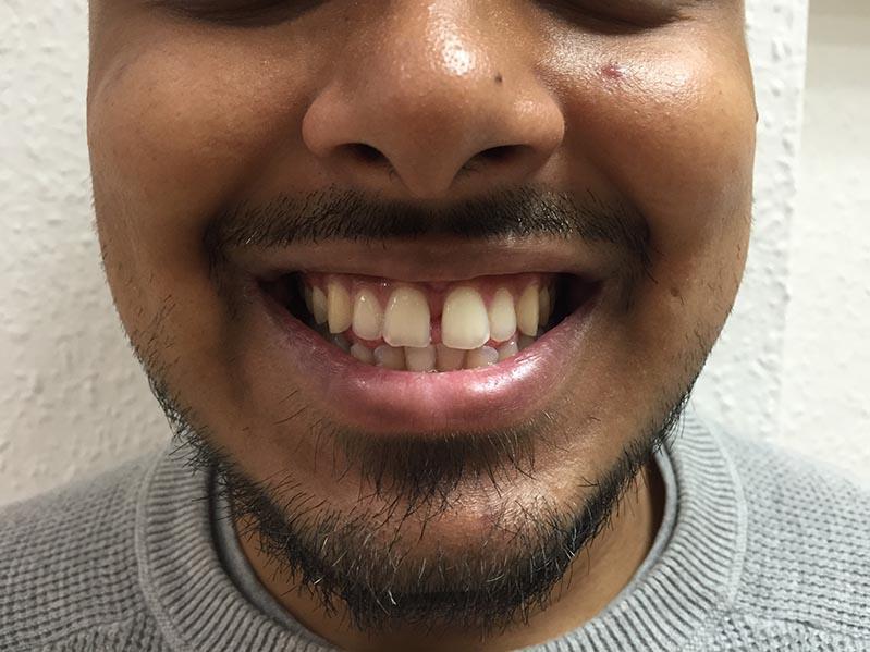 cosmetic dentist lichfield in staffordshire