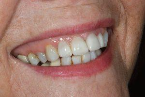 cosmetic dentist in staffordshire lichfield