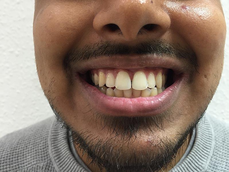 cosmetic dentistry in lichfield staffordshire