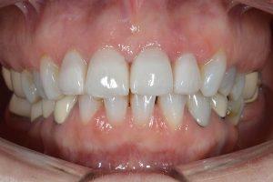 invisalign clear braces in lichfield