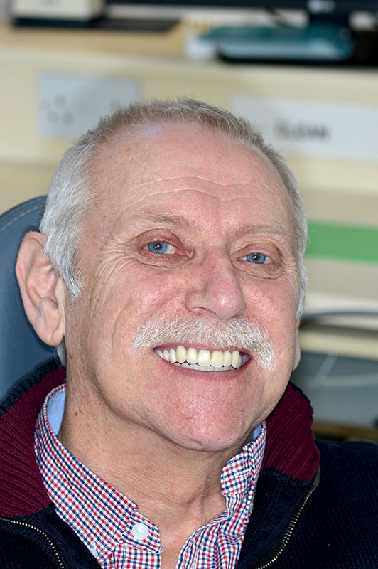 dental implant retained dentures in lichfield