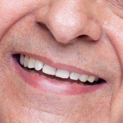 lichfield dentist testimonial