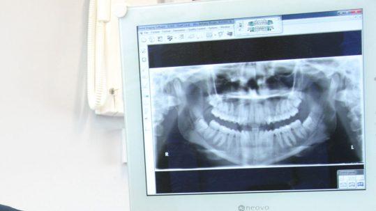 tooth repair dentist lichfield