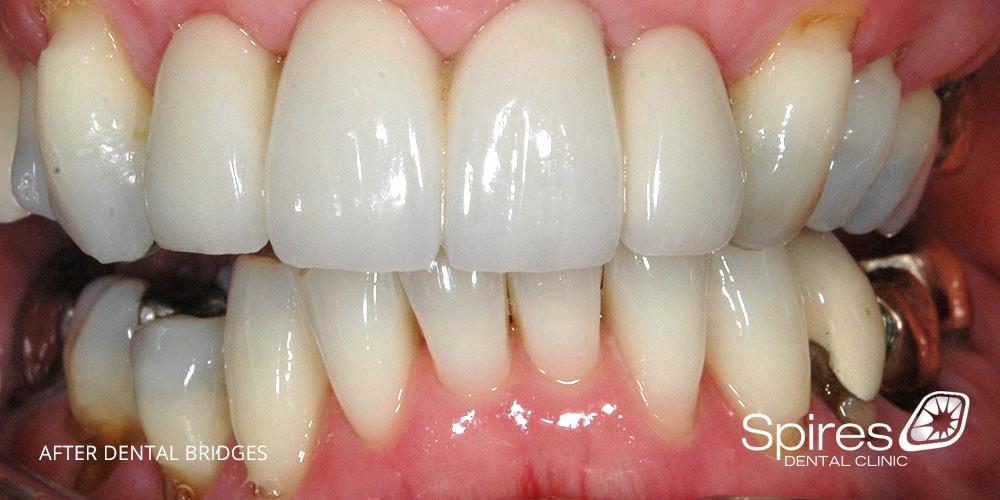 After dental bridge treatment at Spires Dental Clinic Lichfield Staffordshire