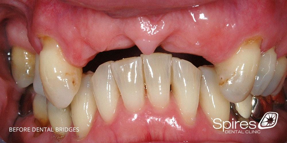 Before dental bridge treatment at Spires Dental Clinic Lichfield Staffordshire