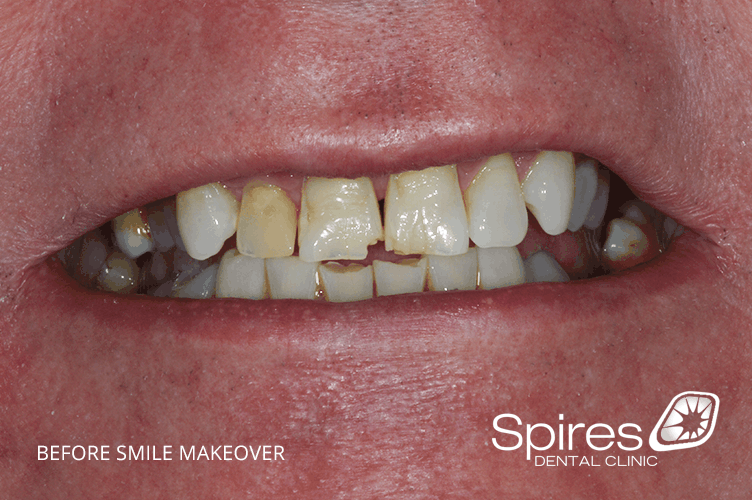 cosmetic smile makeover results in lichfield