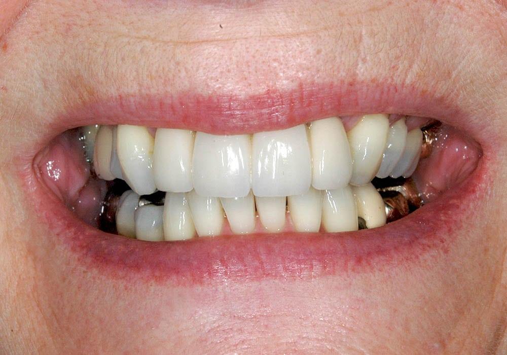 dental bridges case study lichfield