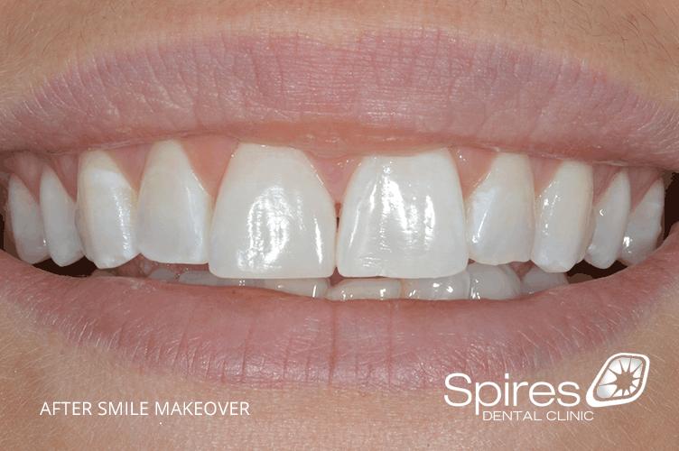 smile makeover in lichfield results