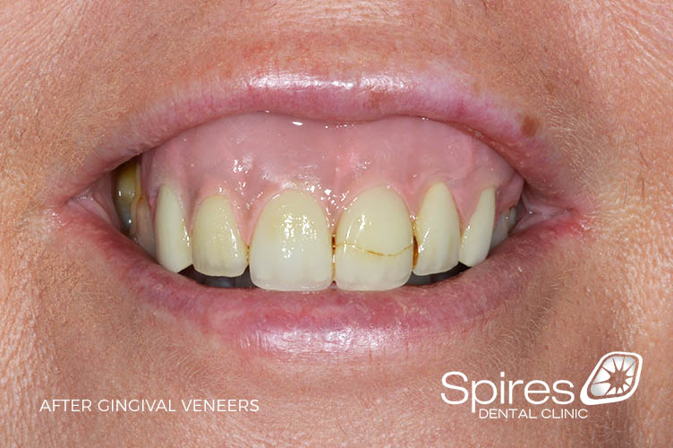after gingival veneers in staffordshire