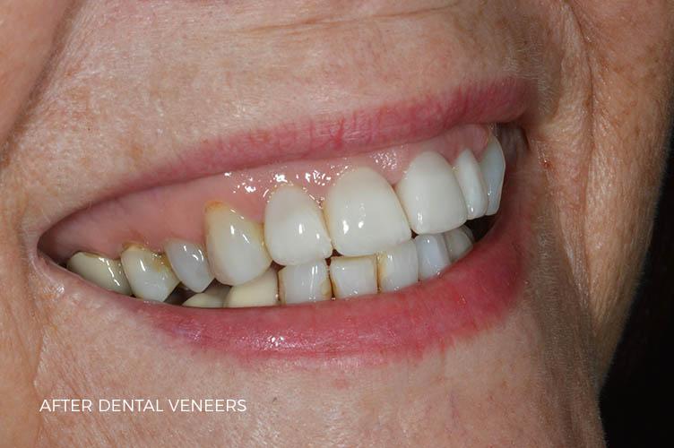 dental veneers in lichfield case study