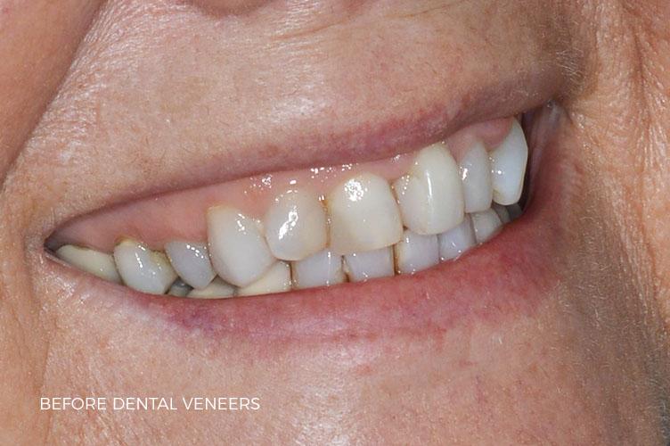 dental veneers in staffordshire case study
