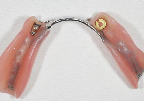 dentures in lichfield