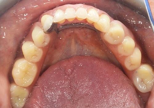 dentures in lichfield staffordshire