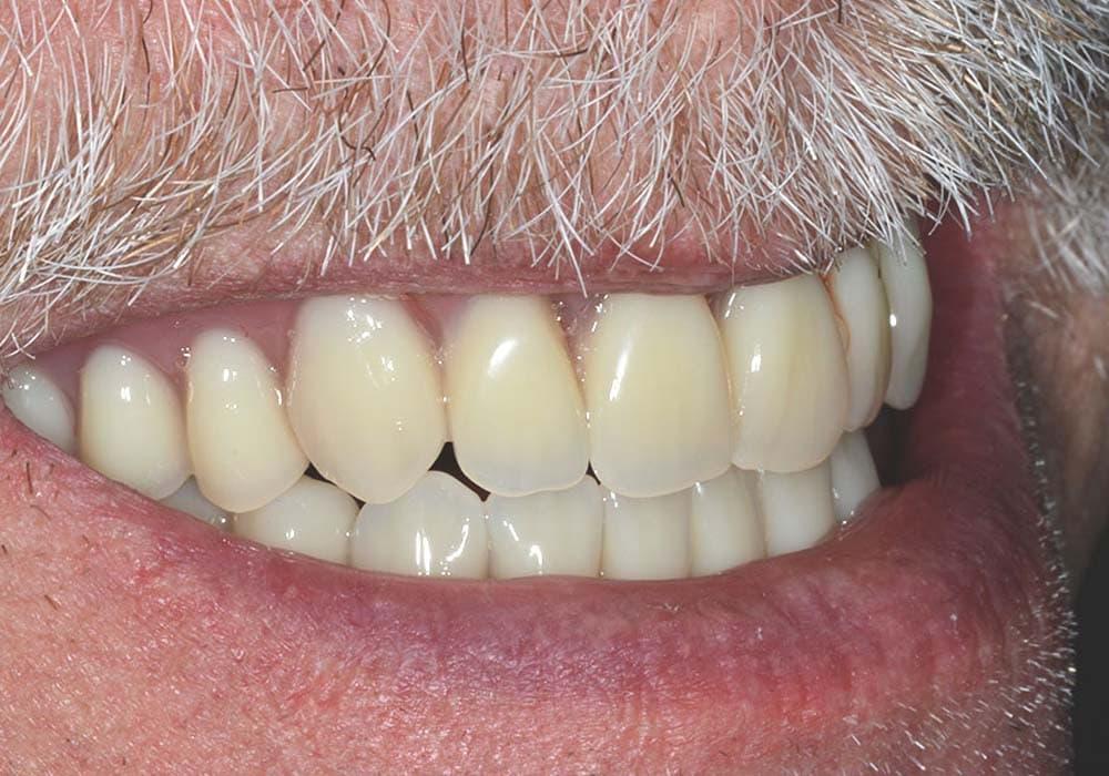 implant retained dentures case study