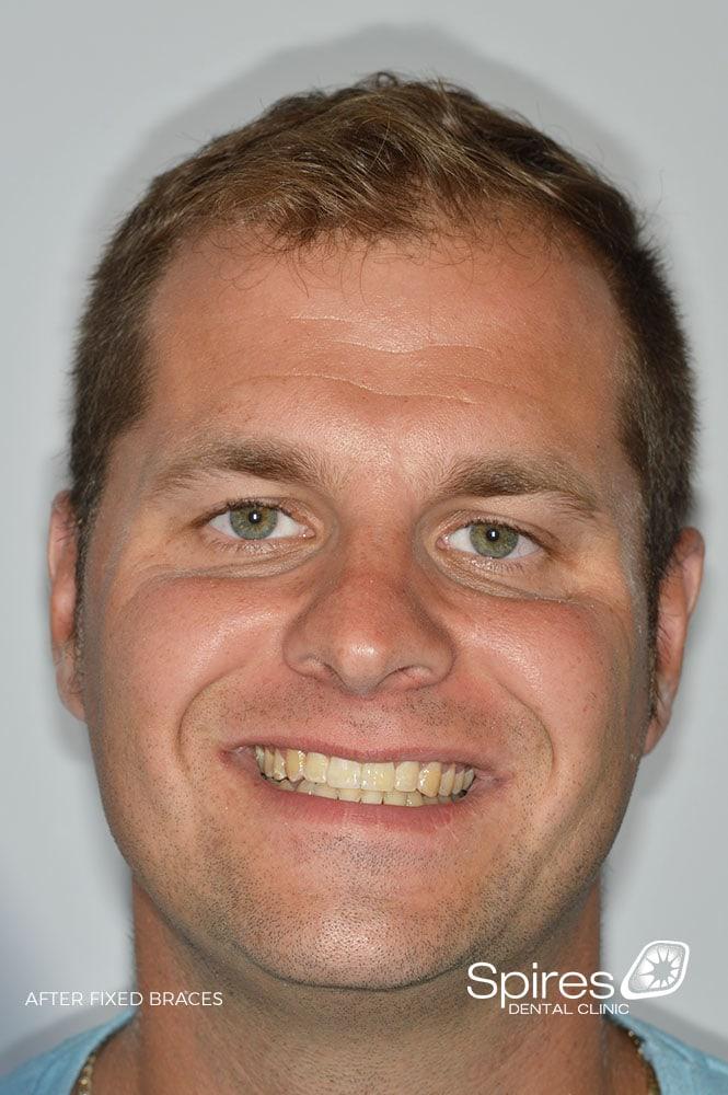 lichfield braces review