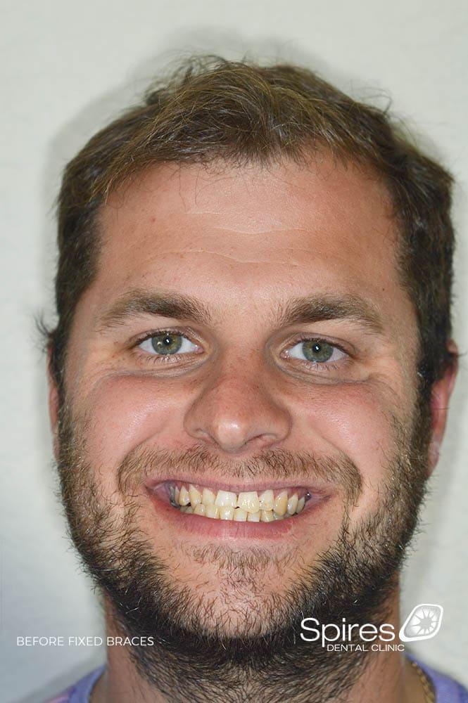 lichfield braces straightening review