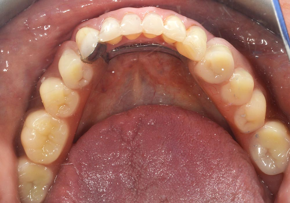 lichfield dentist precision dentures