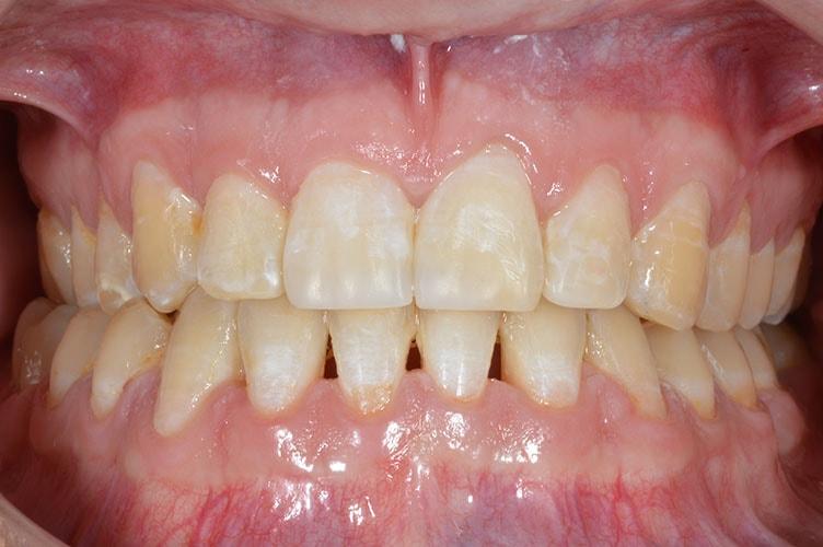 orthodontist in lichfield reviews