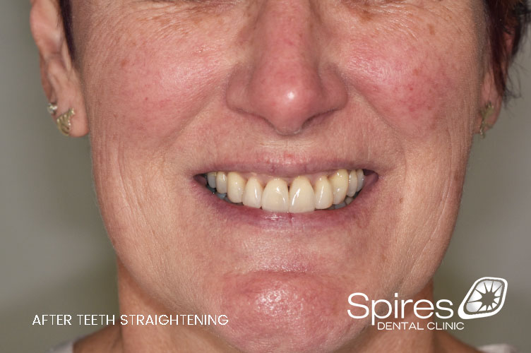lichfield teeth straightening results