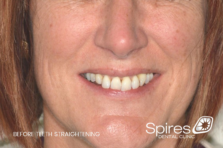 teeth straightening in lichfield case study