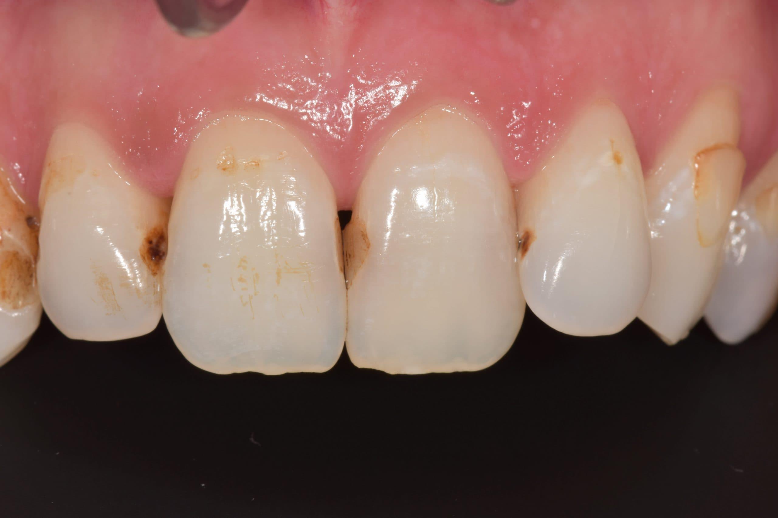lichfield dental clinic composite bonding