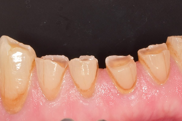teeth grinding treatment lichfield
