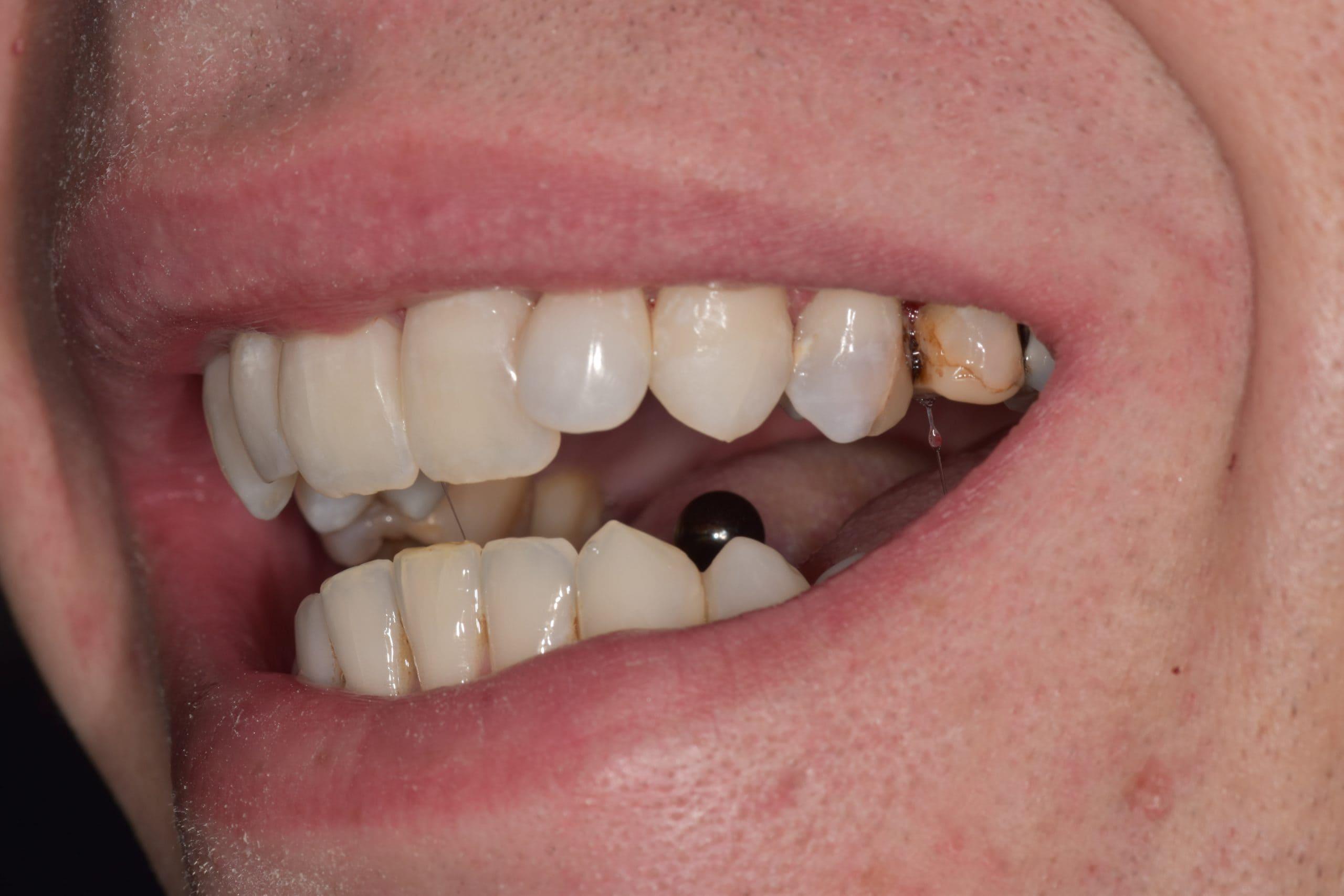 lichfield dentist teeth stain treatment