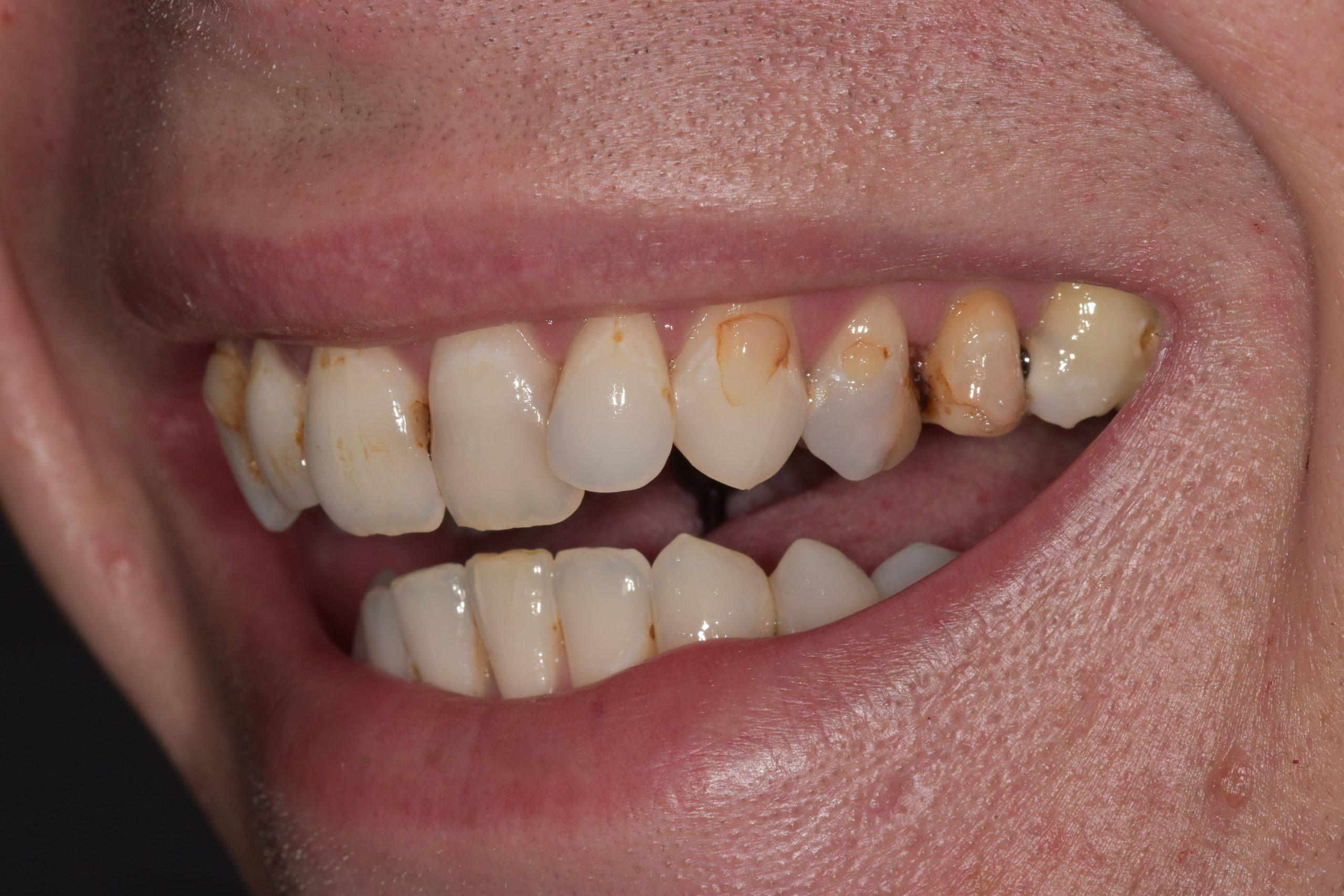 lichfield teeth stain treatment