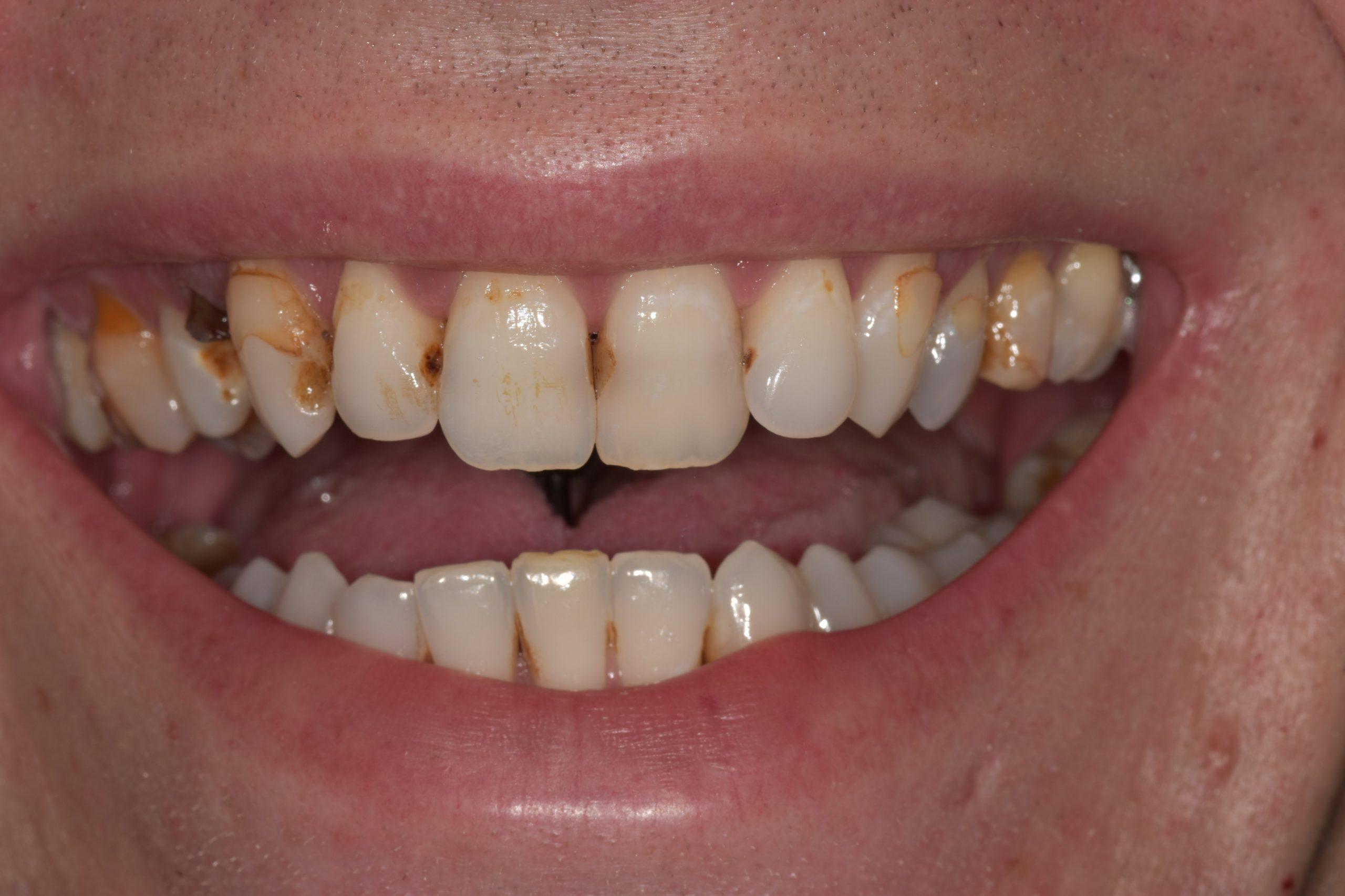 lichfield teeth whitening treatment