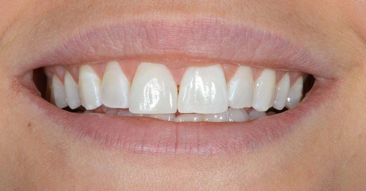 cosmetic smile makeovers in staffordshire