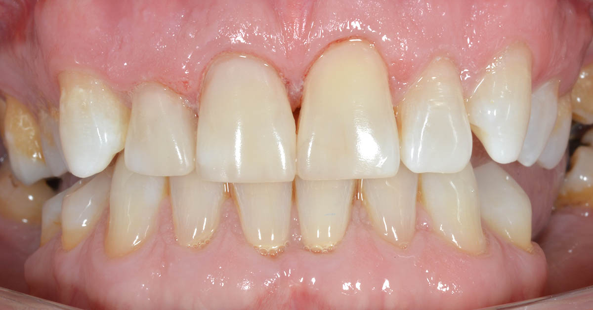 tamworth cosmetic dentists smile makeover