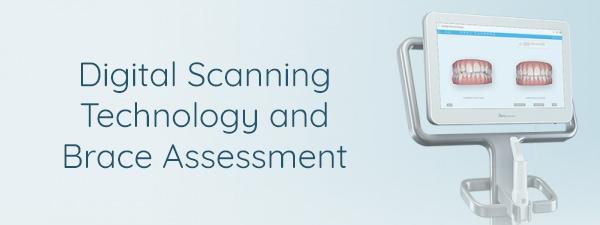 digital scanning technology spires dental
